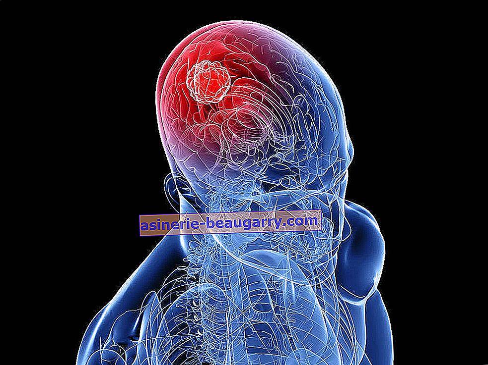 Quels sont les symptômes et les causes du cancer rectal?