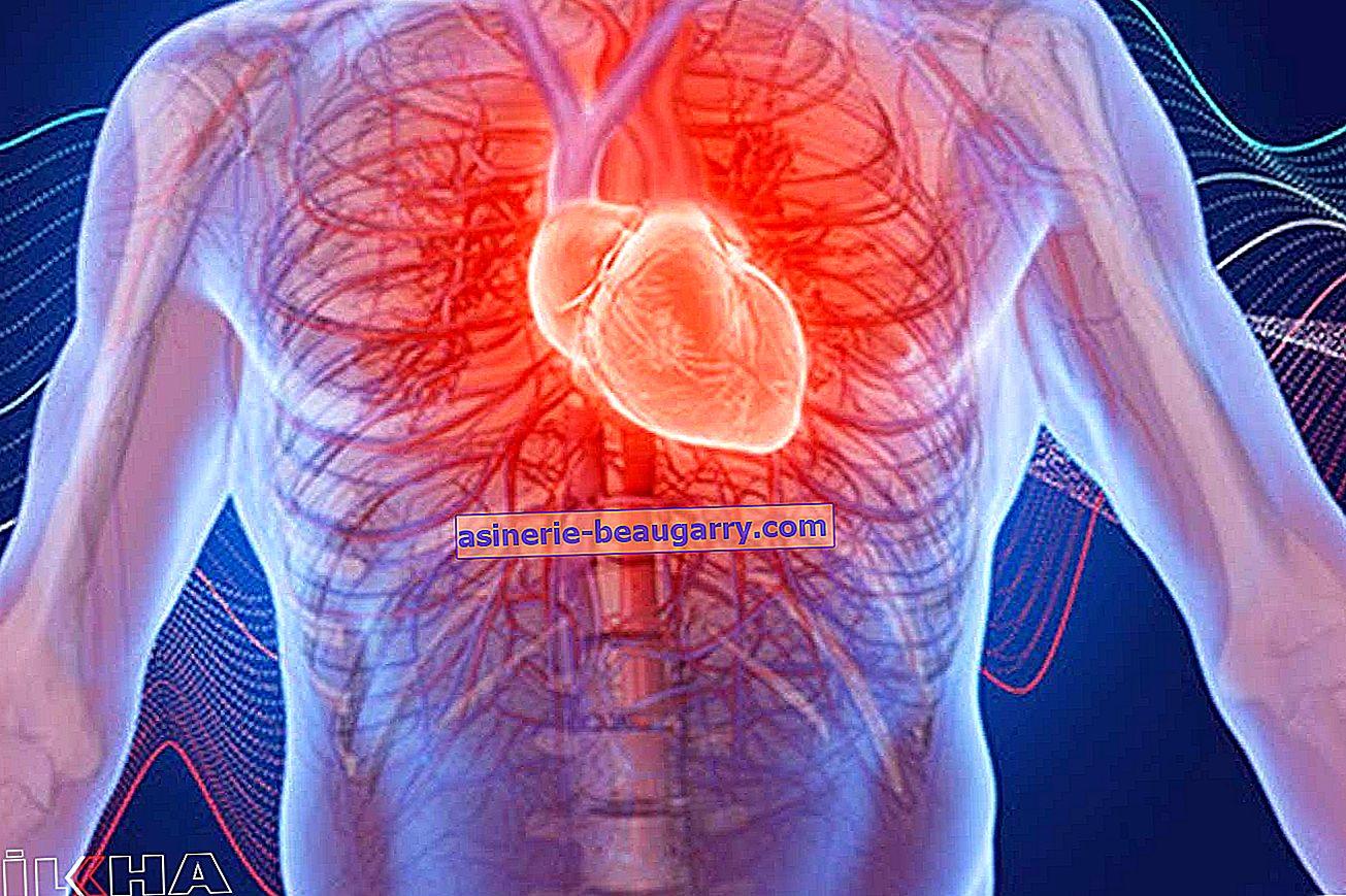 Des palpitations cardiaques soudaines peuvent être une maladie