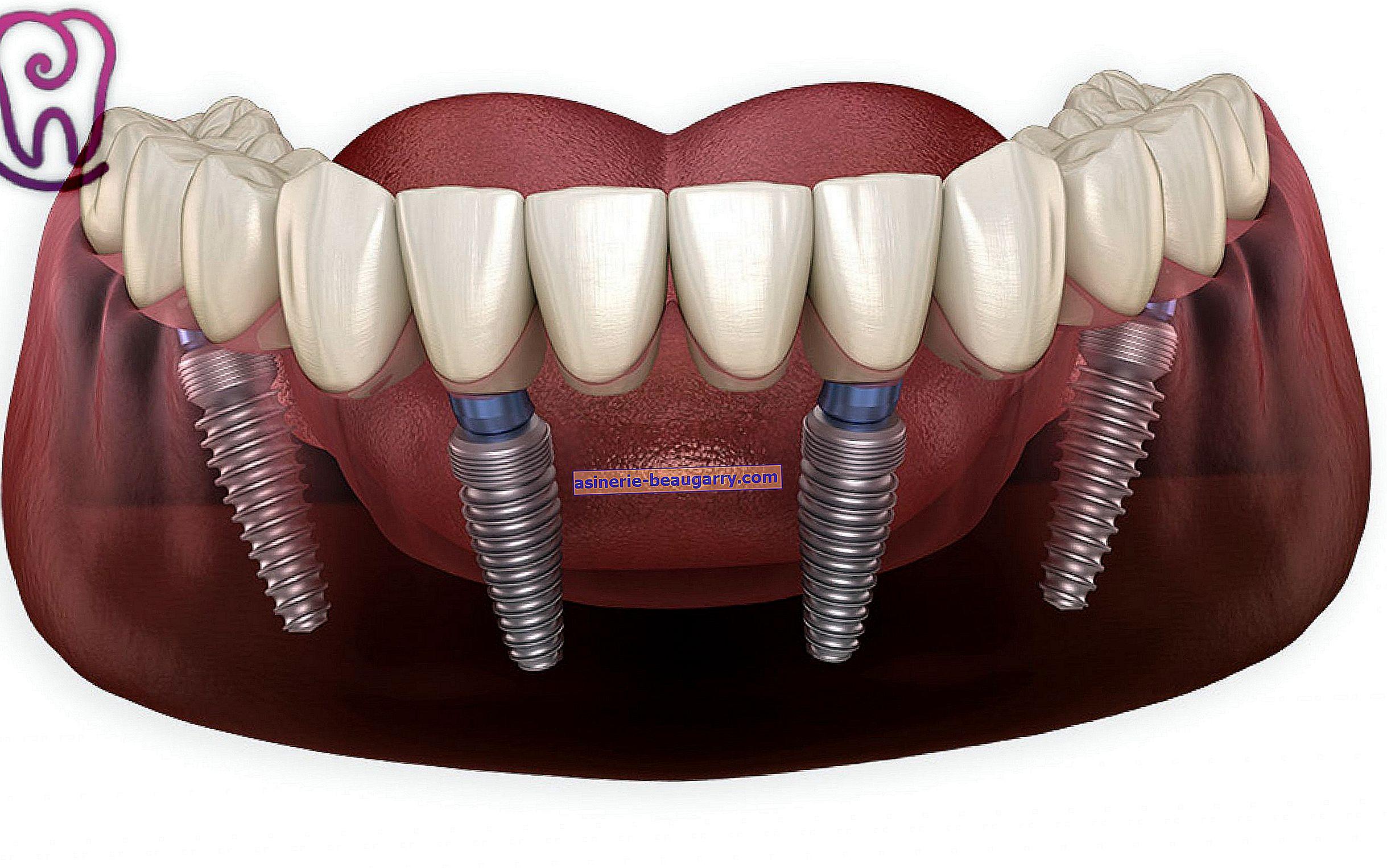 Qu'est-ce que le traitement implantaire?