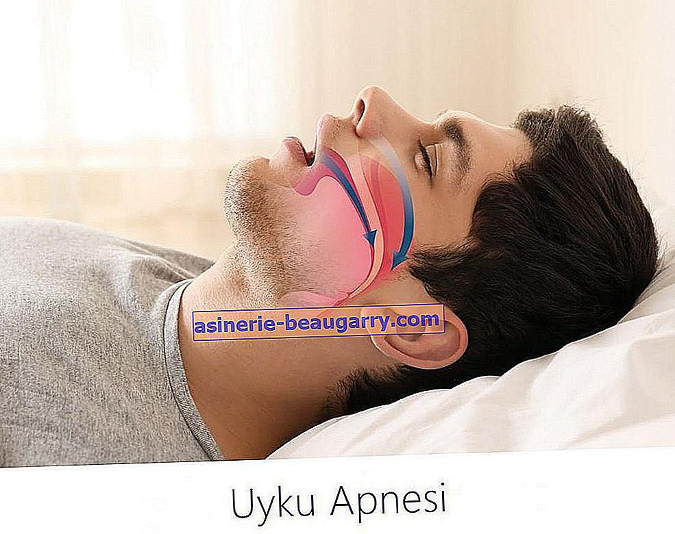Qu'est-ce que l'apnée du sommeil et comment est-elle traitée?
