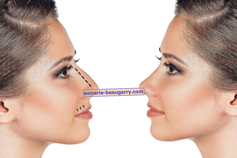 Causes les plus courantes de saignement de nez