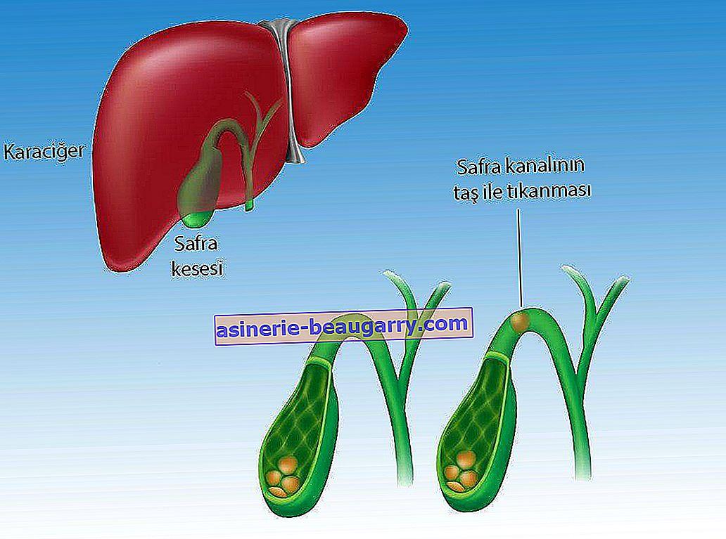 Symptômes et traitement du cancer de la vésicule biliaire