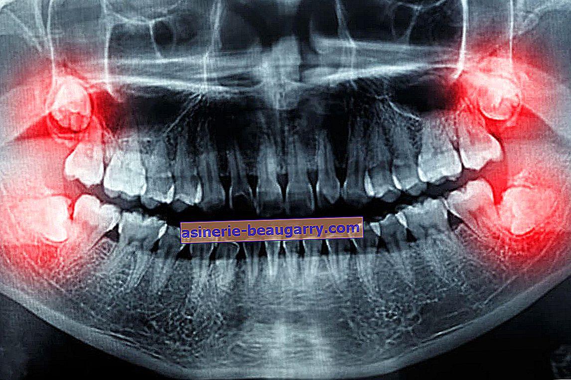 20 зъба се разпадат по-бързо