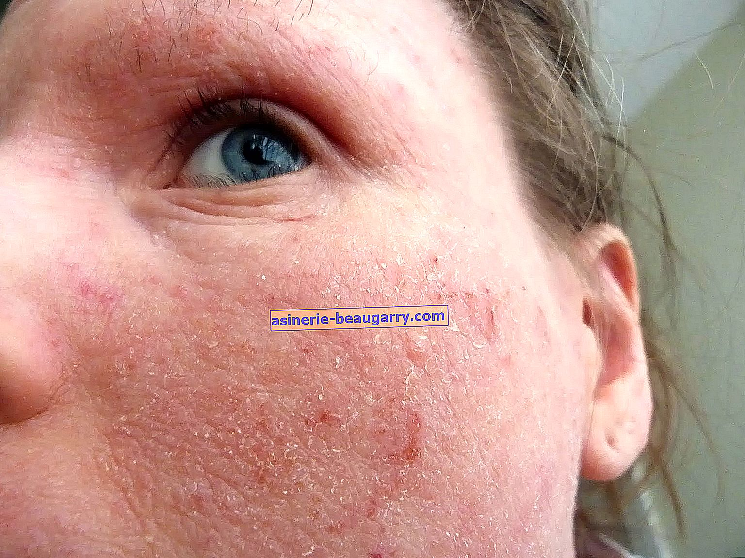 O que é eczema? Como o eczema passa?